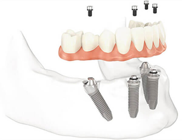 Full Arch with Only 4 Implants Lower